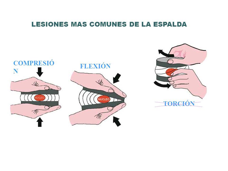 LESIONES MAS COMUNES DE LA ESPALDA