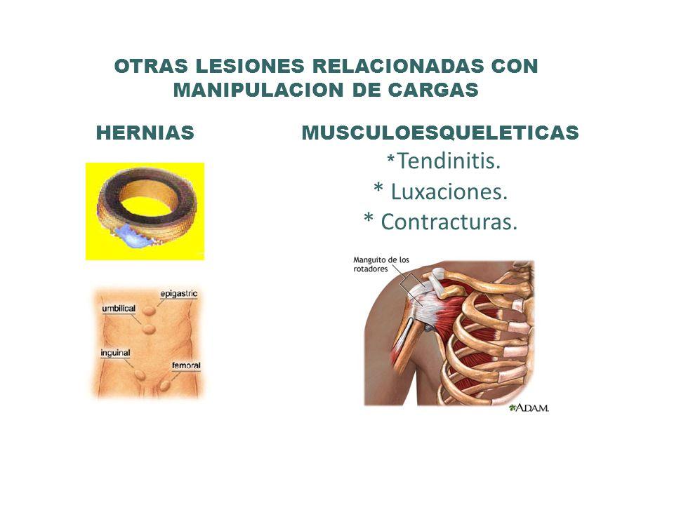 OTRAS LESIONES RELACIONADAS CON MANIPULACION DE CARGAS