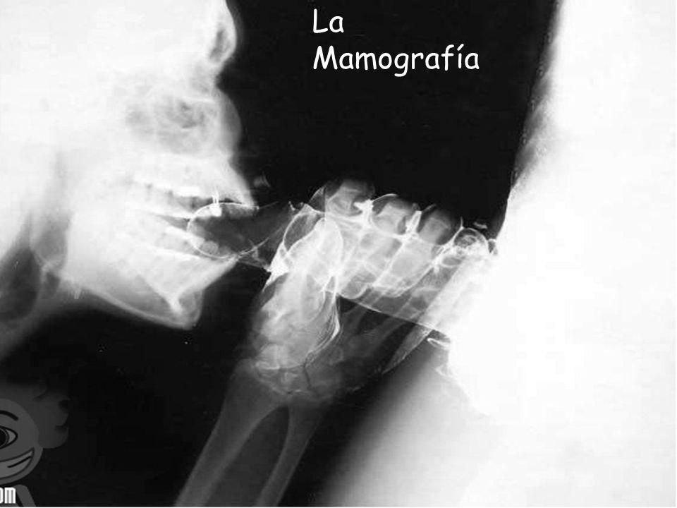 La Mamografía MAMOGRAFÍA