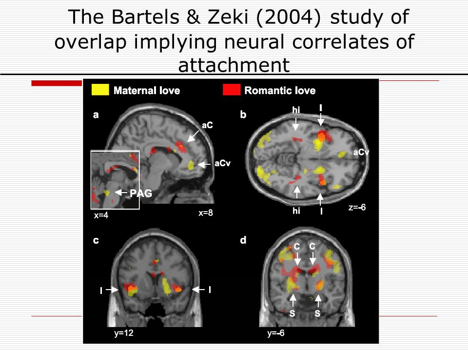 The Bartels & Zeki (2004) study of overlap implying neural correlates of attachment
