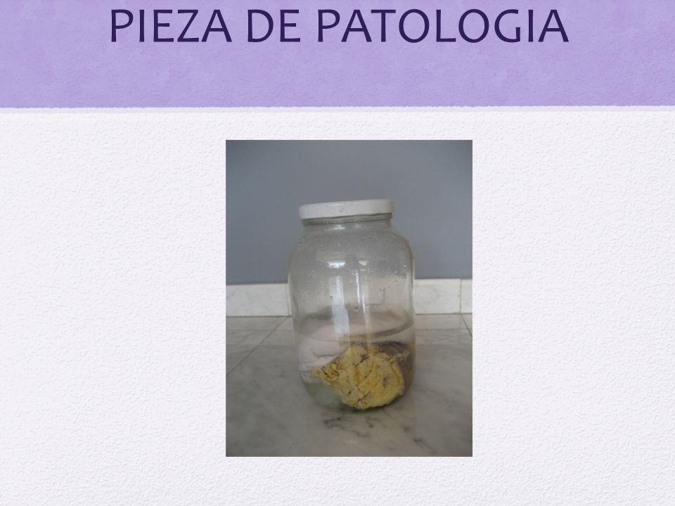 PIEZA DE PATOLOGIA