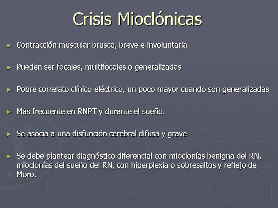 Crisis Mioclónicas Contracción muscular brusca, breve e involuntaria