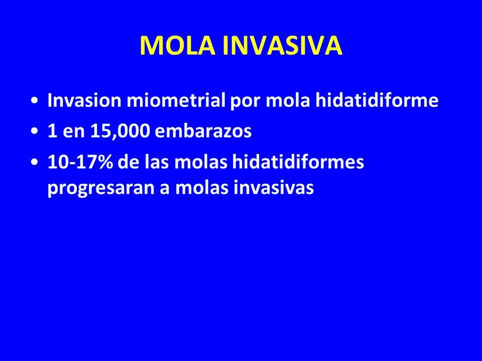 MOLA INVASIVA Invasion miometrial por mola hidatidiforme