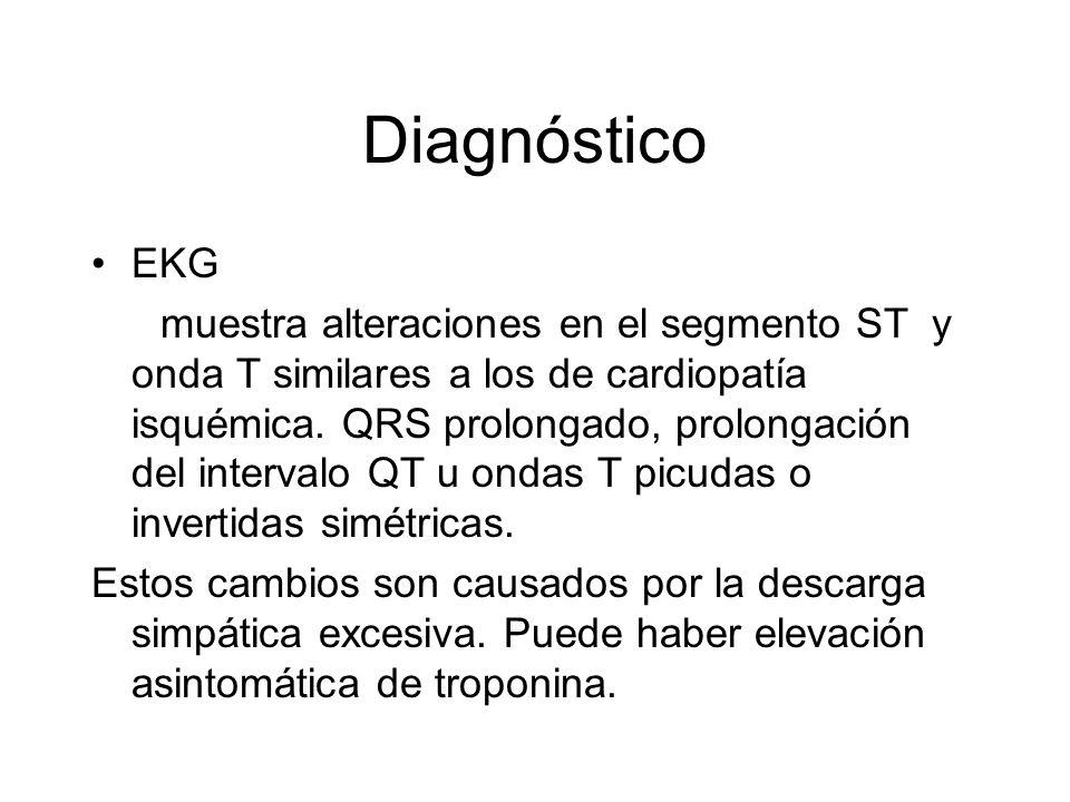 Diagnóstico EKG.
