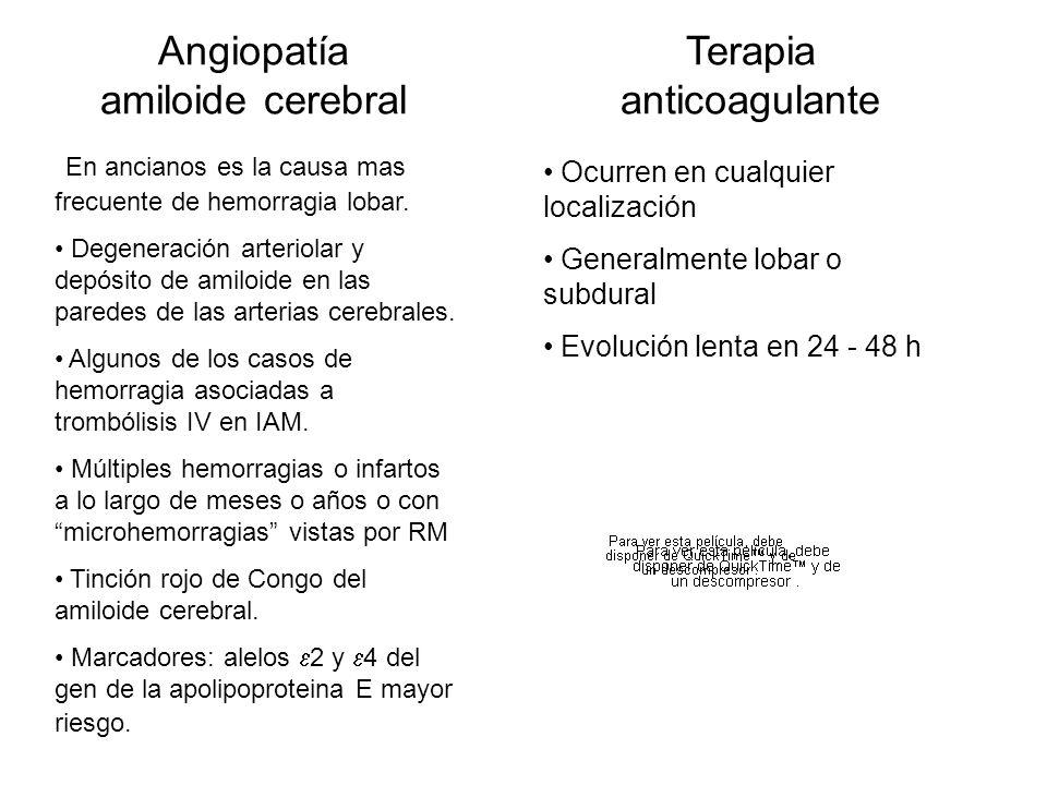 Angiopatía amiloide cerebral
