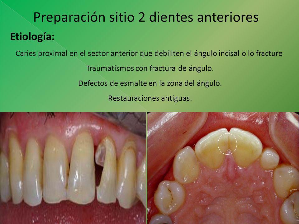 Preparación sitio 2 dientes anteriores