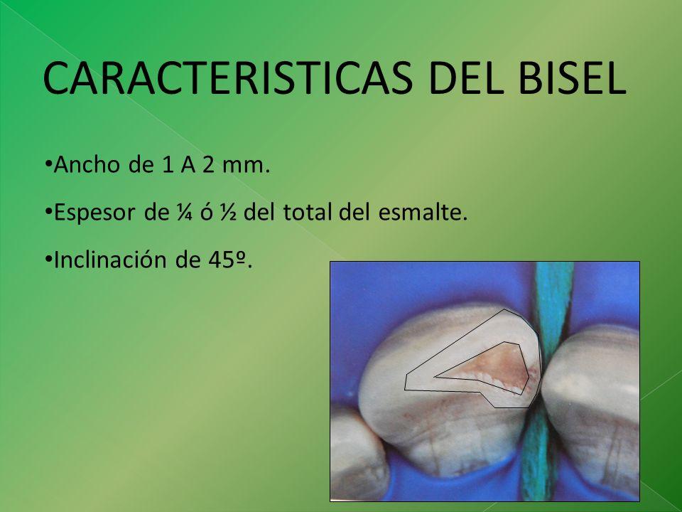 CARACTERISTICAS DEL BISEL