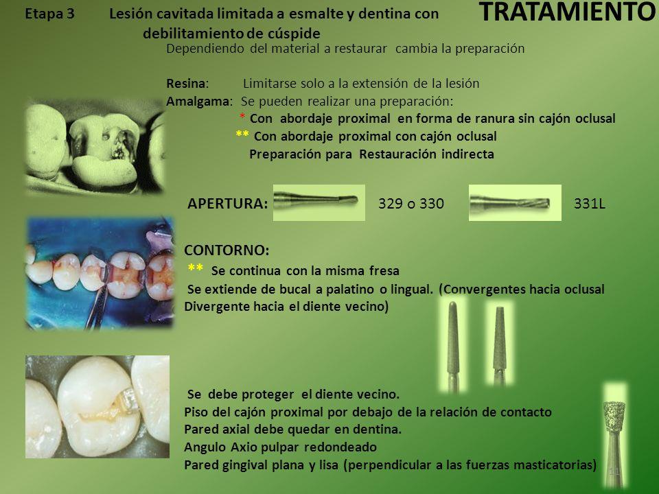 TRATAMIENTO Etapa 3 Lesión cavitada limitada a esmalte y dentina con debilitamiento de cúspide.