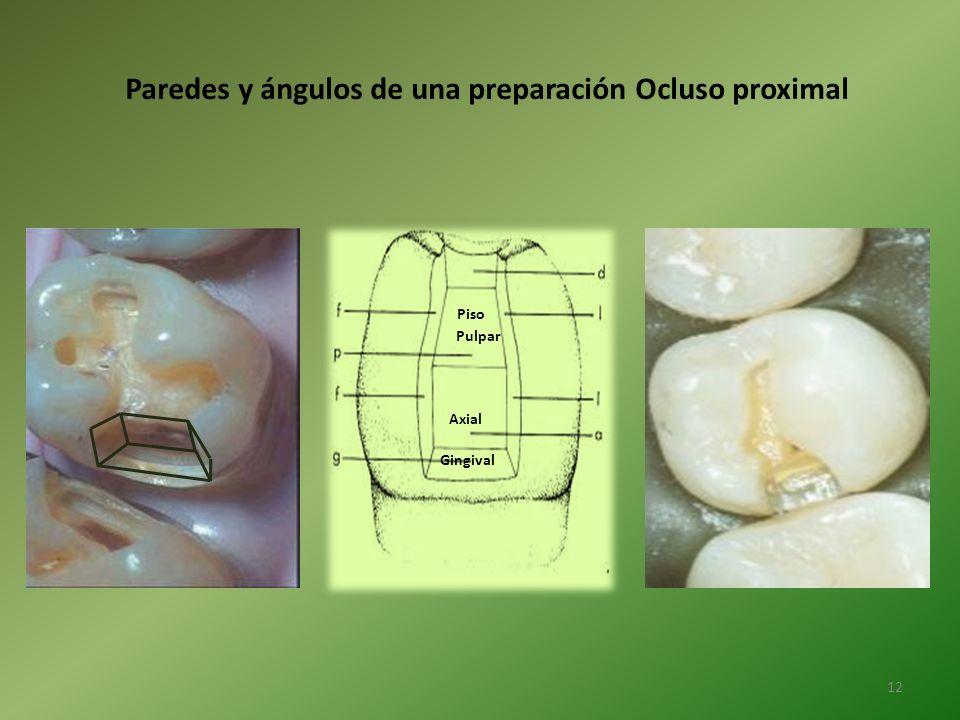Paredes y ángulos de una preparación Ocluso proximal