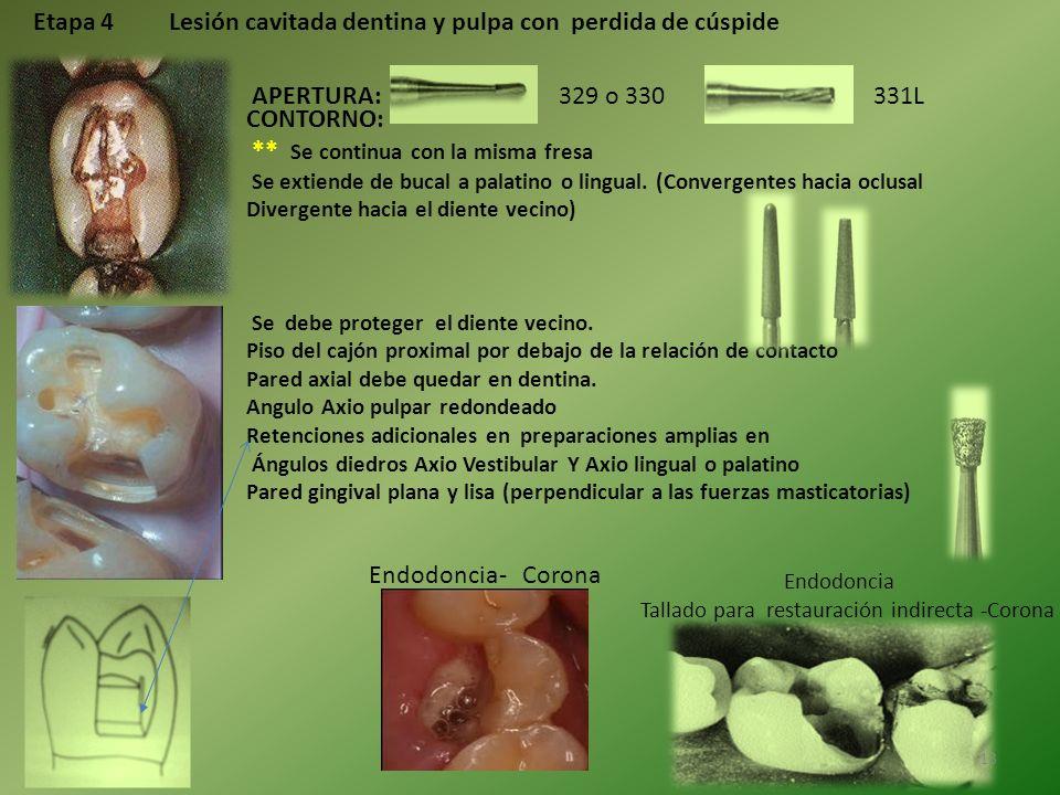 Etapa 4 Lesión cavitada dentina y pulpa con perdida de cúspide