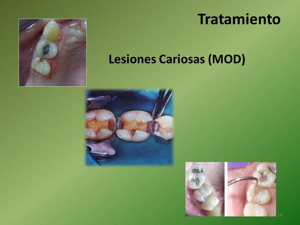 Tratamiento Lesiones Cariosas (MOD)