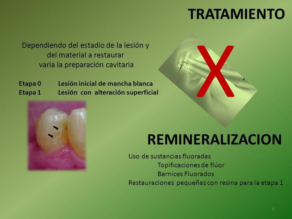 X TRATAMIENTO REMINERALIZACION