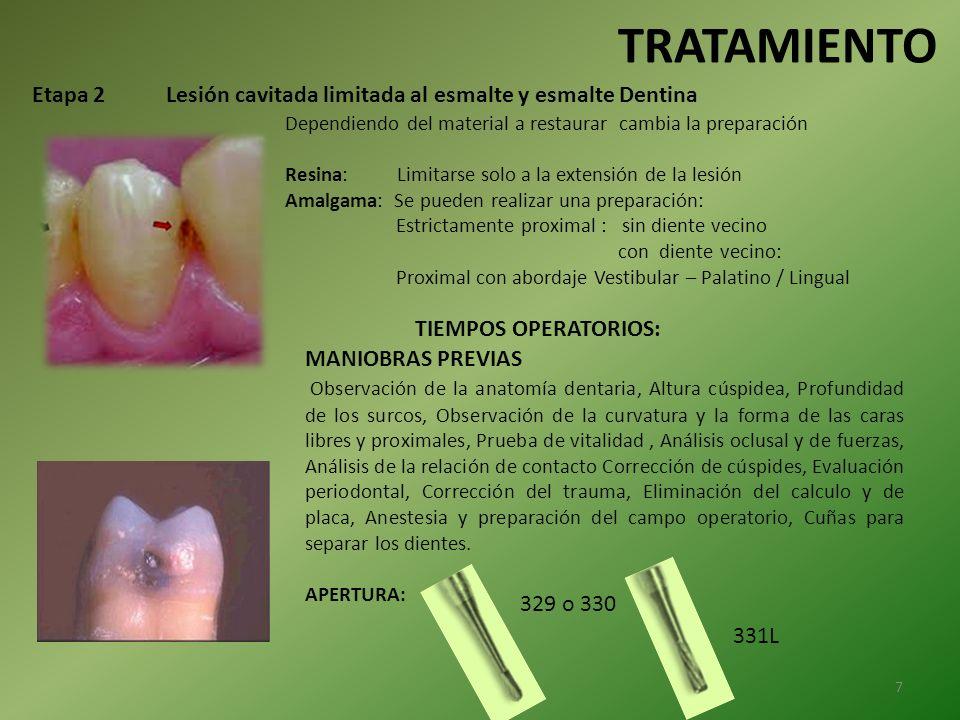TRATAMIENTO Etapa 2 Lesión cavitada limitada al esmalte y esmalte Dentina. Dependiendo del material a restaurar cambia la preparación.