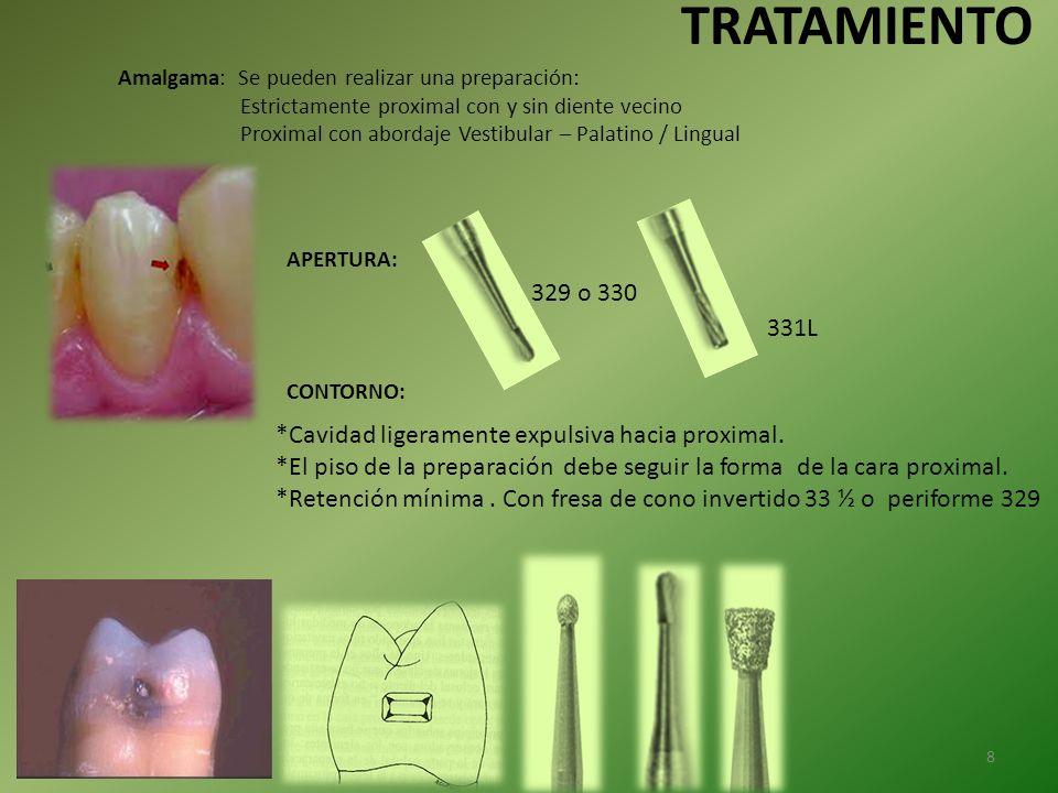 TRATAMIENTO Amalgama: Se pueden realizar una preparación: Estrictamente proximal con y sin diente vecino.