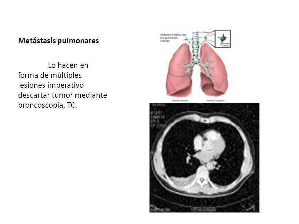Metástasis pulmonares