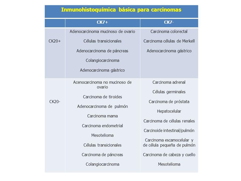 Inmunohistoquímica básica para carcinomas
