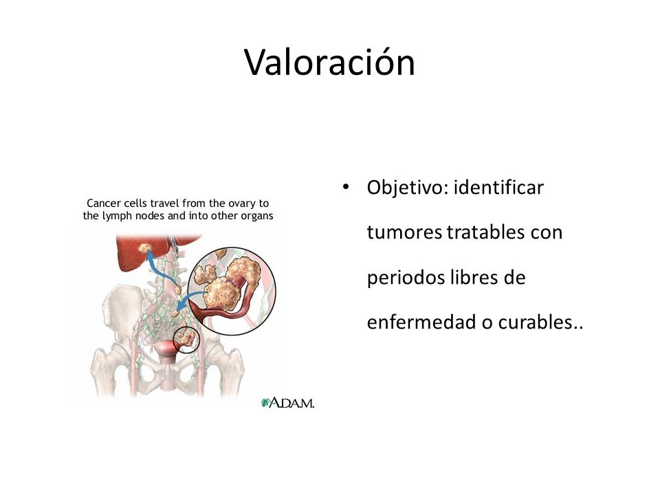 Valoración Objetivo: identificar tumores tratables con periodos libres de enfermedad o curables..