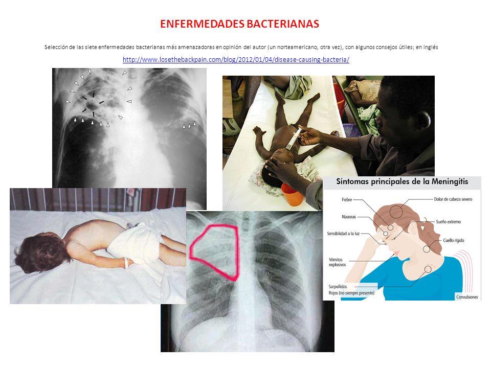 ENFERMEDADES BACTERIANAS