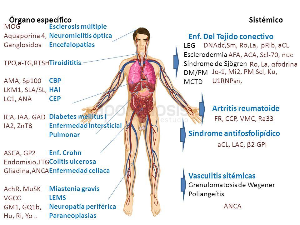 Órgano específico Sistémico