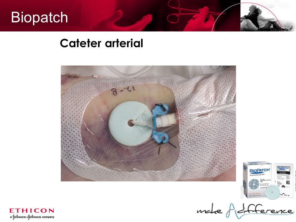 Biopatch Cateter arterial