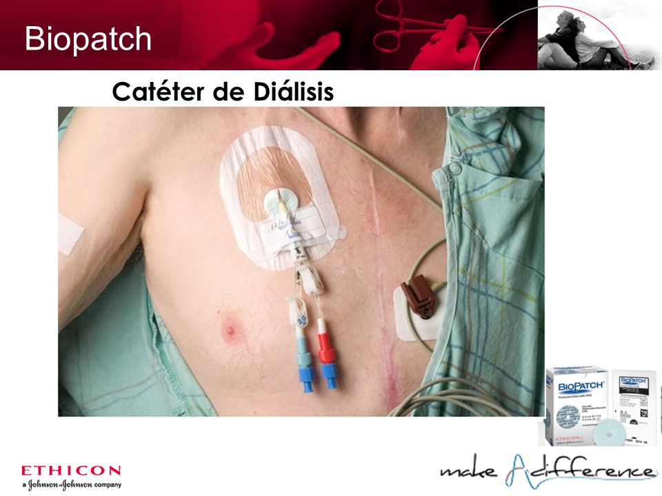 Biopatch Catéter de Diálisis