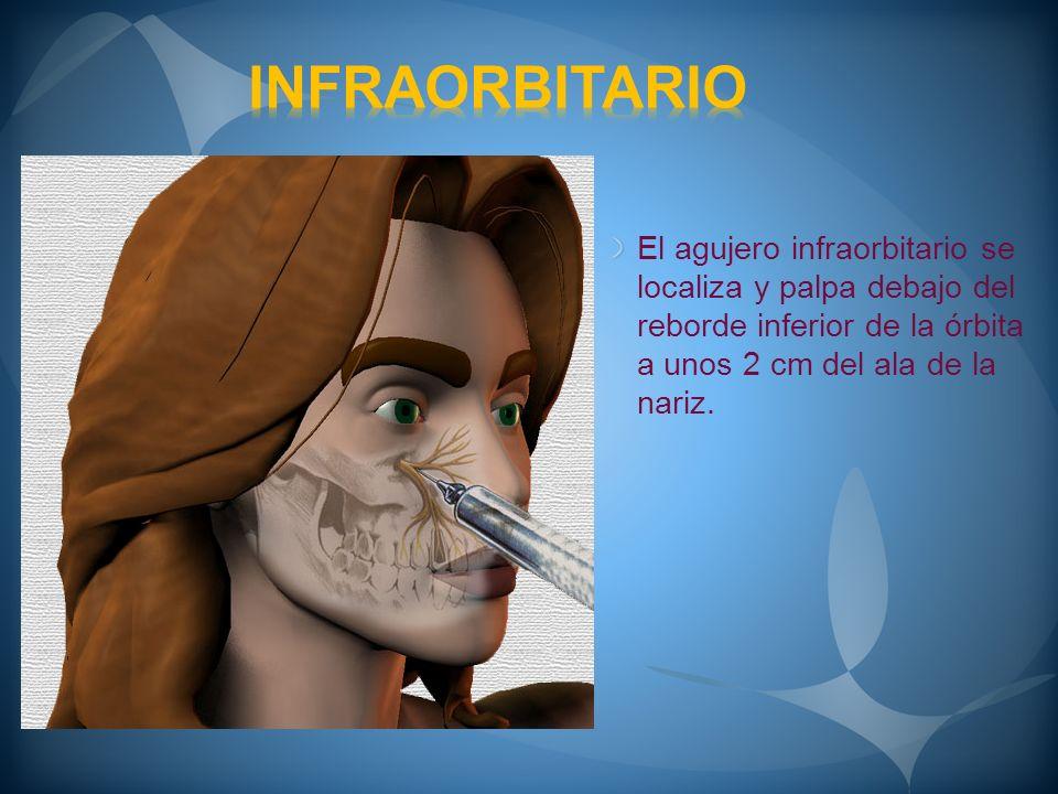 INFRAORBITARIO El agujero infraorbitario se localiza y palpa debajo del reborde inferior de la órbita a unos 2 cm del ala de la nariz.