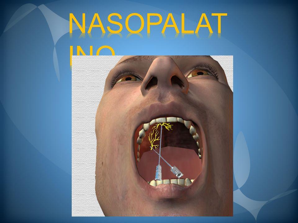 NASOPALATINO