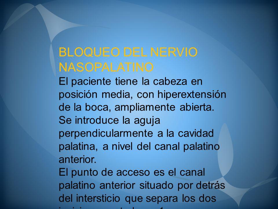 BLOQUEO DEL NERVIO NASOPALATINO