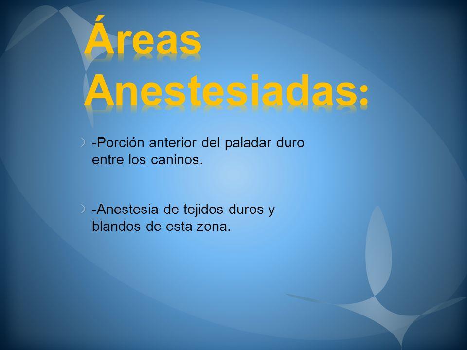 Áreas Anestesiadas: -Porción anterior del paladar duro entre los caninos.