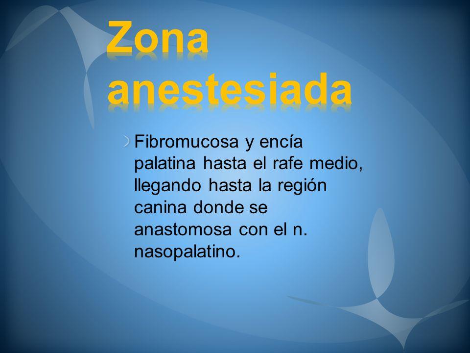Zona anestesiada Fibromucosa y encía palatina hasta el rafe medio, llegando hasta la región canina donde se anastomosa con el n.