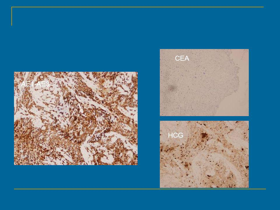 CEA AE1-AE3 HCG