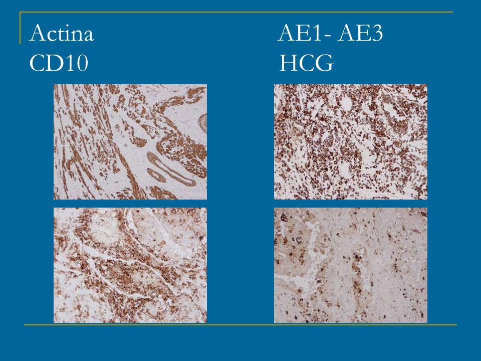 Actina AE1- AE3 CD10 HCG