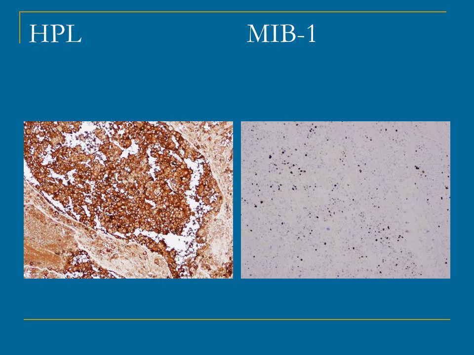HPL MIB-1