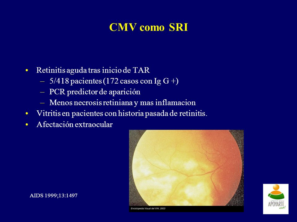 CMV como SRI Retinitis aguda tras inicio de TAR