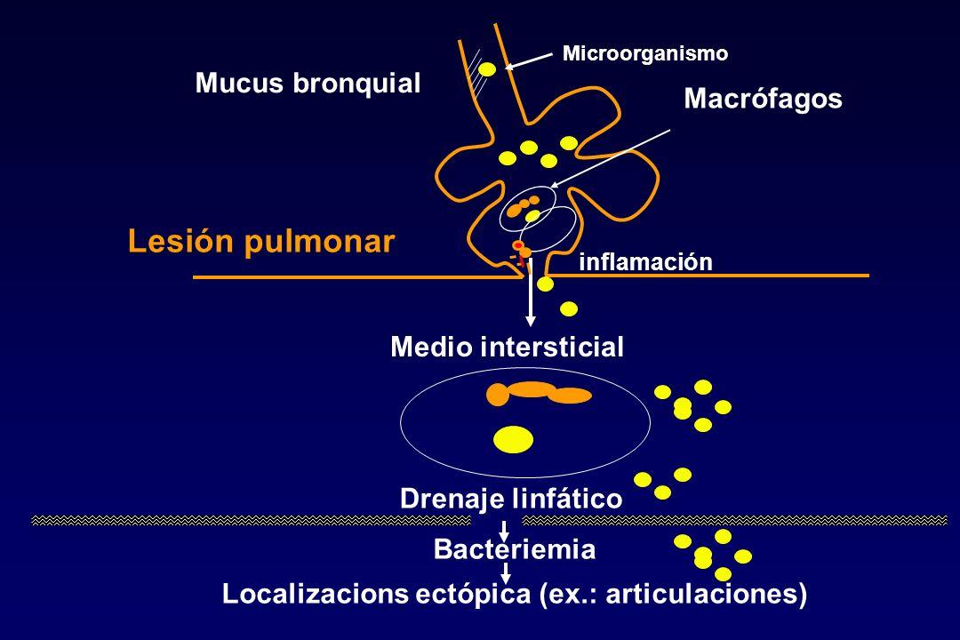 Localizacions ectópica (ex.: articulaciones)
