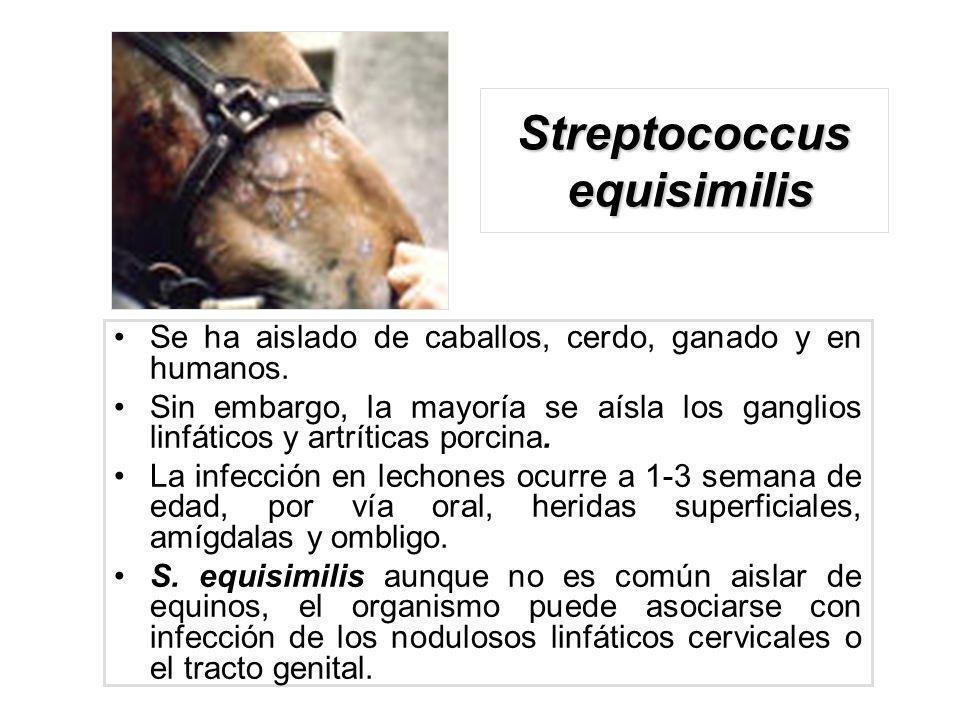 Streptococcus equisimilis