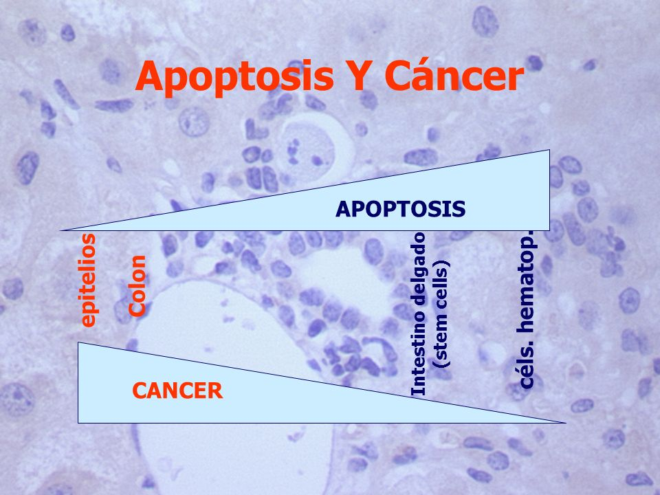 Apoptosis Y Cáncer APOPTOSIS epitelios Colon céls. hematop. CANCER