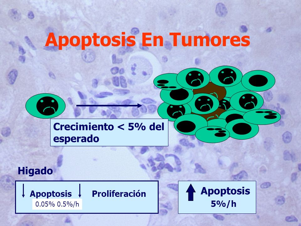 Apoptosis En Tumores Crecimiento < 5% del esperado Higado Apoptosis