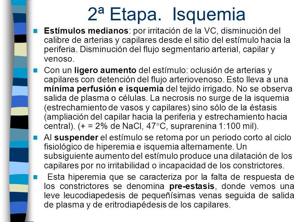 2ª Etapa. Isquemia