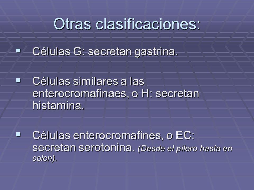 Otras clasificaciones: