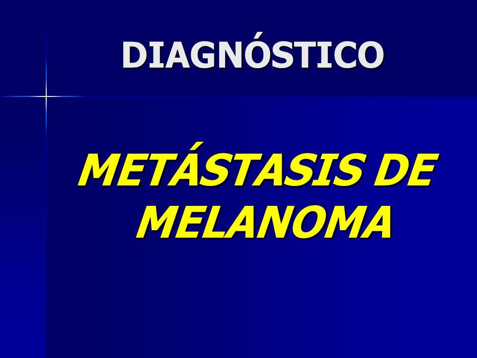 METÁSTASIS DE MELANOMA