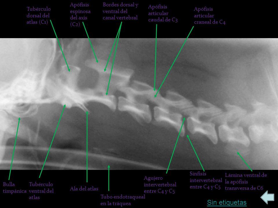 Sin etiquetas Apófisis espinosa del axis (C2)