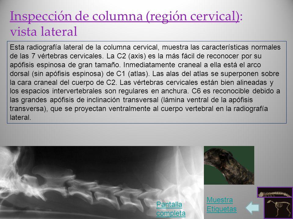 Inspección de columna (región cervical): vista lateral