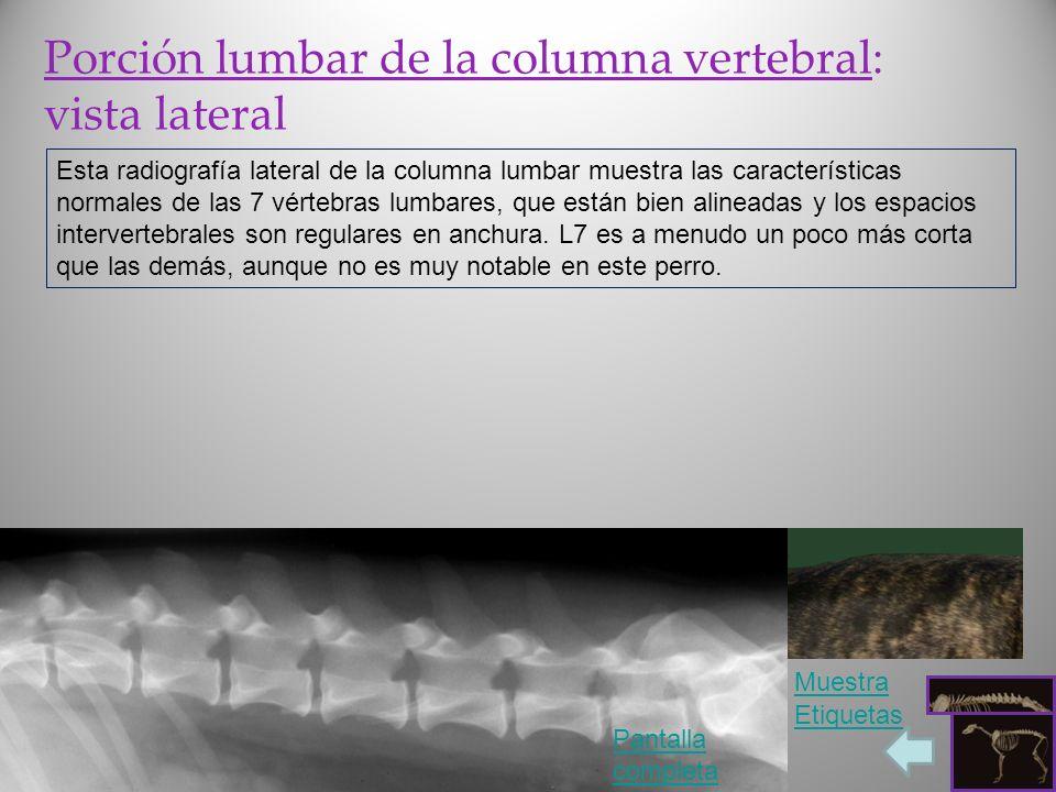 Porción lumbar de la columna vertebral: vista lateral