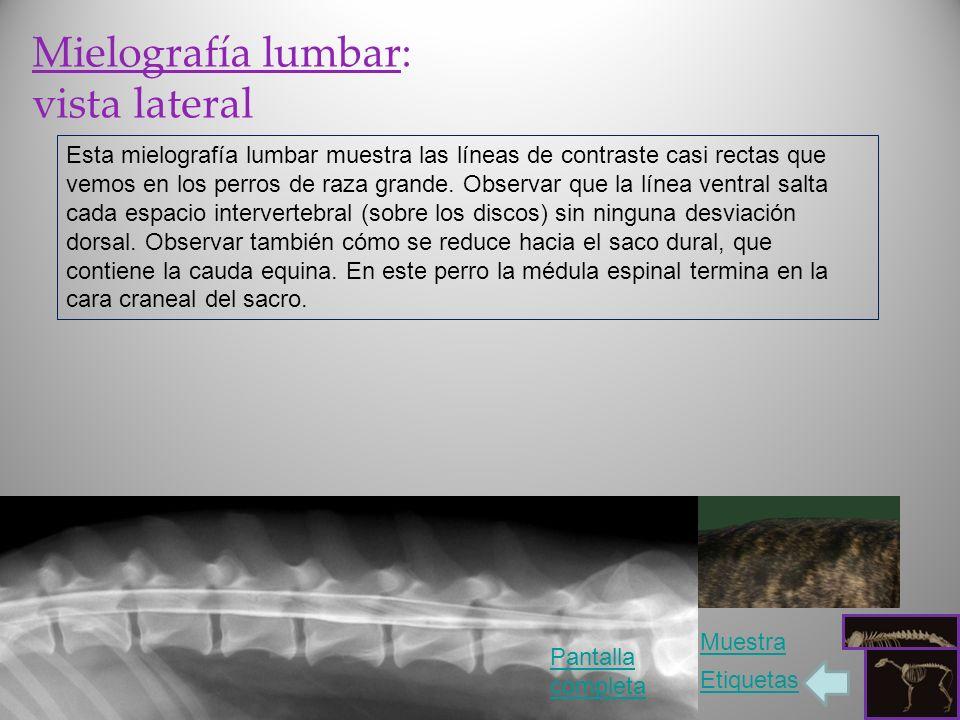 Mielografía lumbar: vista lateral