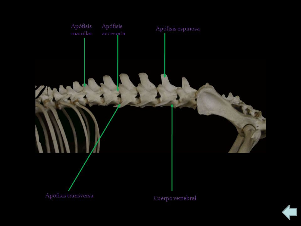 Apófisis mamilar Apófisis accesoria Apófisis espinosa Apófisis transversa Cuerpo vertebral