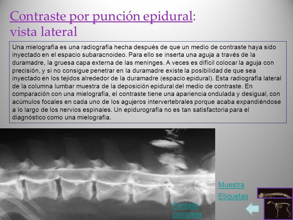 Contraste por punción epidural: vista lateral