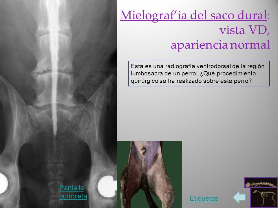 Mielograf'ia del saco dural: vista VD, apariencia normal