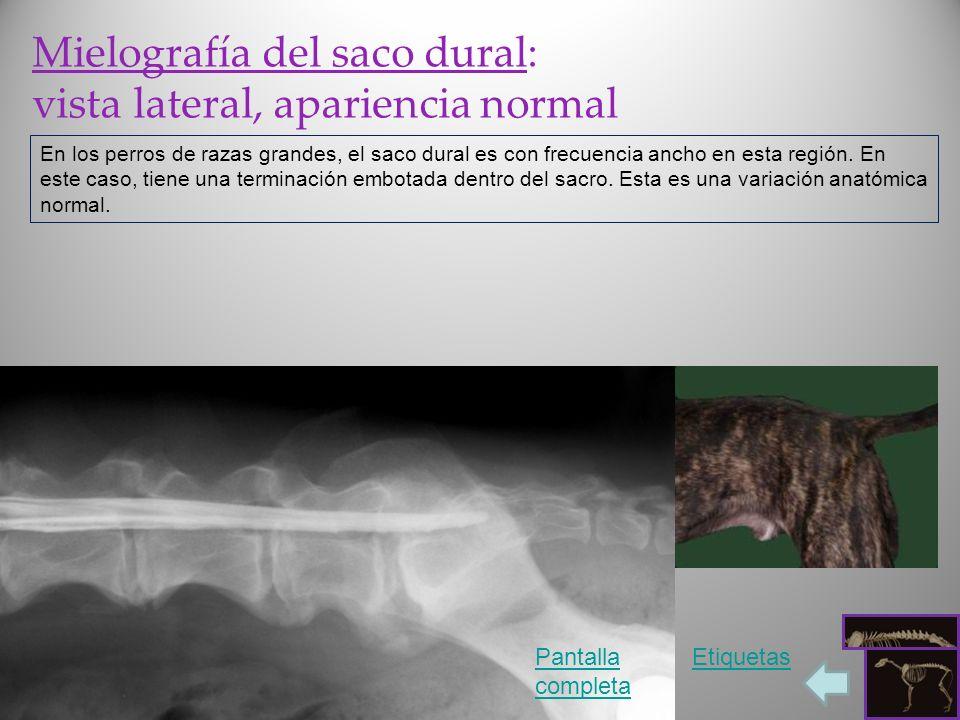 Mielografía del saco dural: vista lateral, apariencia normal