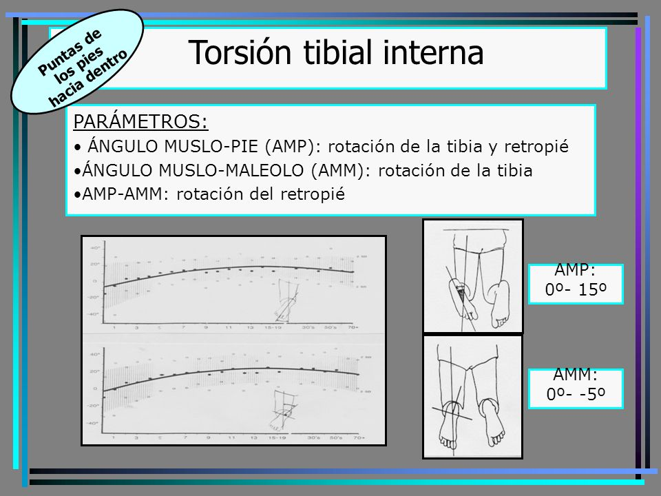 Torsión tibial interna